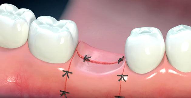 Not Healing After Dental Work